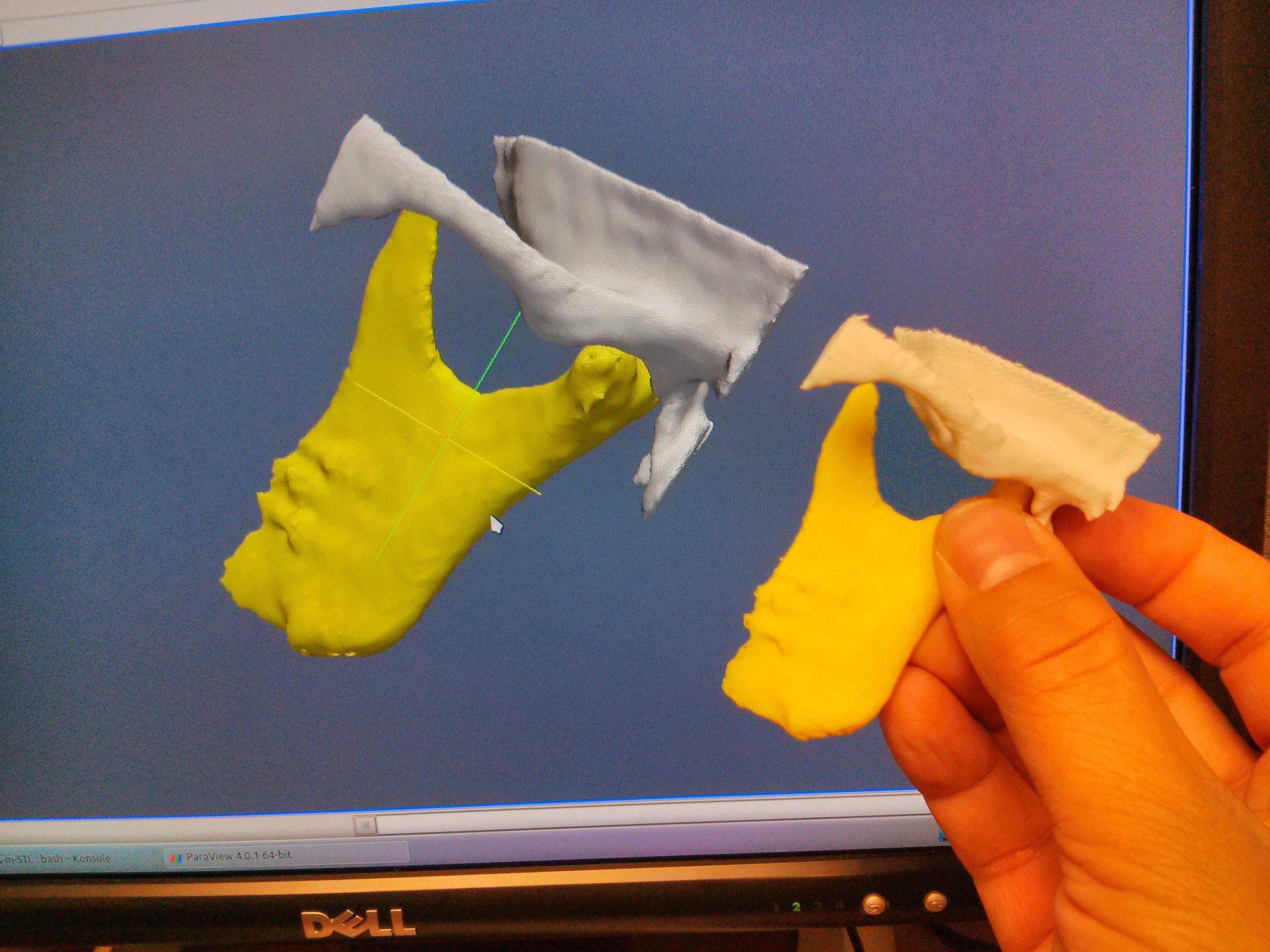 3D Printing Bone Models with Slicer and Paraview - Kitware Blog